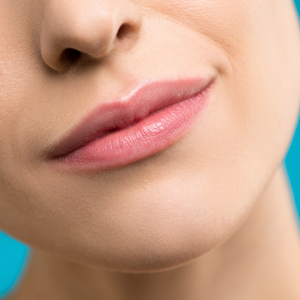 relleno labios Marbella